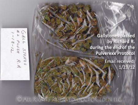 Gallstones passed by Richard R