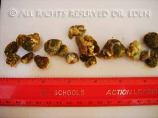 First Bunch of Gallstones