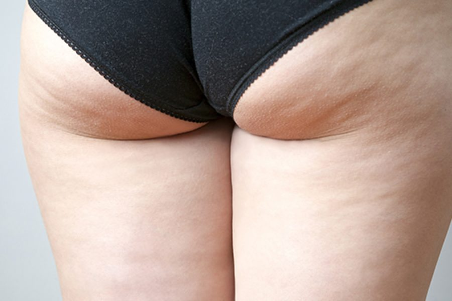 Cellulite – Thighs