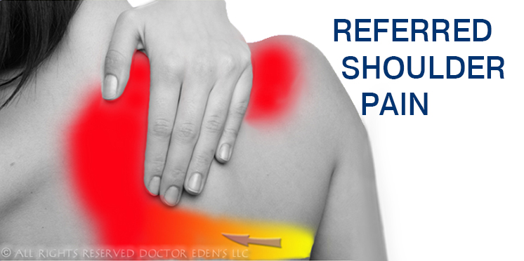 Gallbladder Symptoms | Referred Shoulder Pain